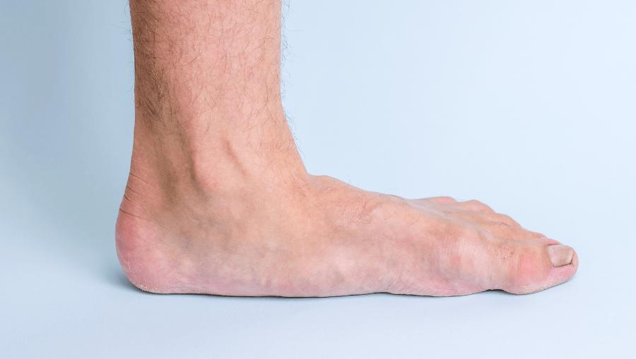 boala articulației piciorului de atlet cum să ajute cu durerea în articulația umărului